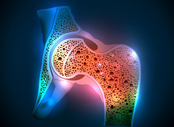 Οστεοπόρωση: μια συχνή πάθηση των γυναικών