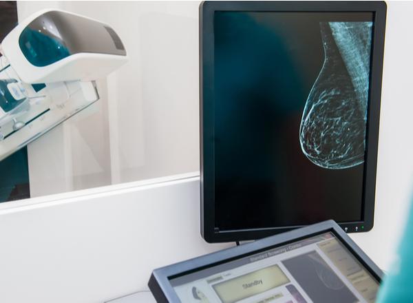 ROLL: Πρωτοποριακή μέθοδος εντοπισμού του καρκίνου του Μαστού κατά τη χειρουργική επέμβαση